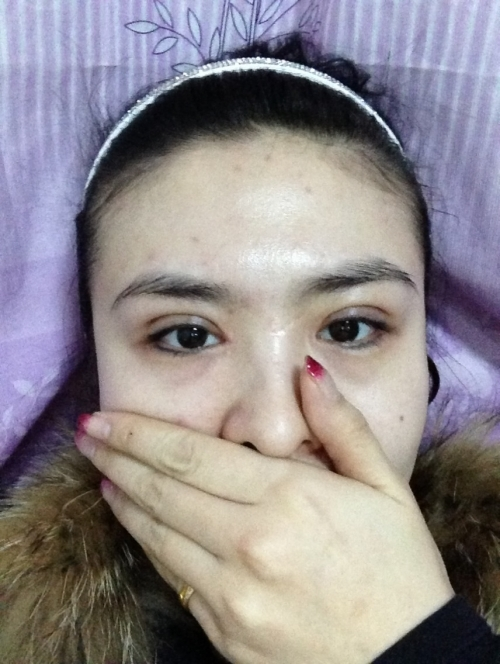 我做的韩式三点双眼皮和开内眼角