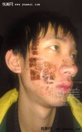 麻药灼烧皮肤图片